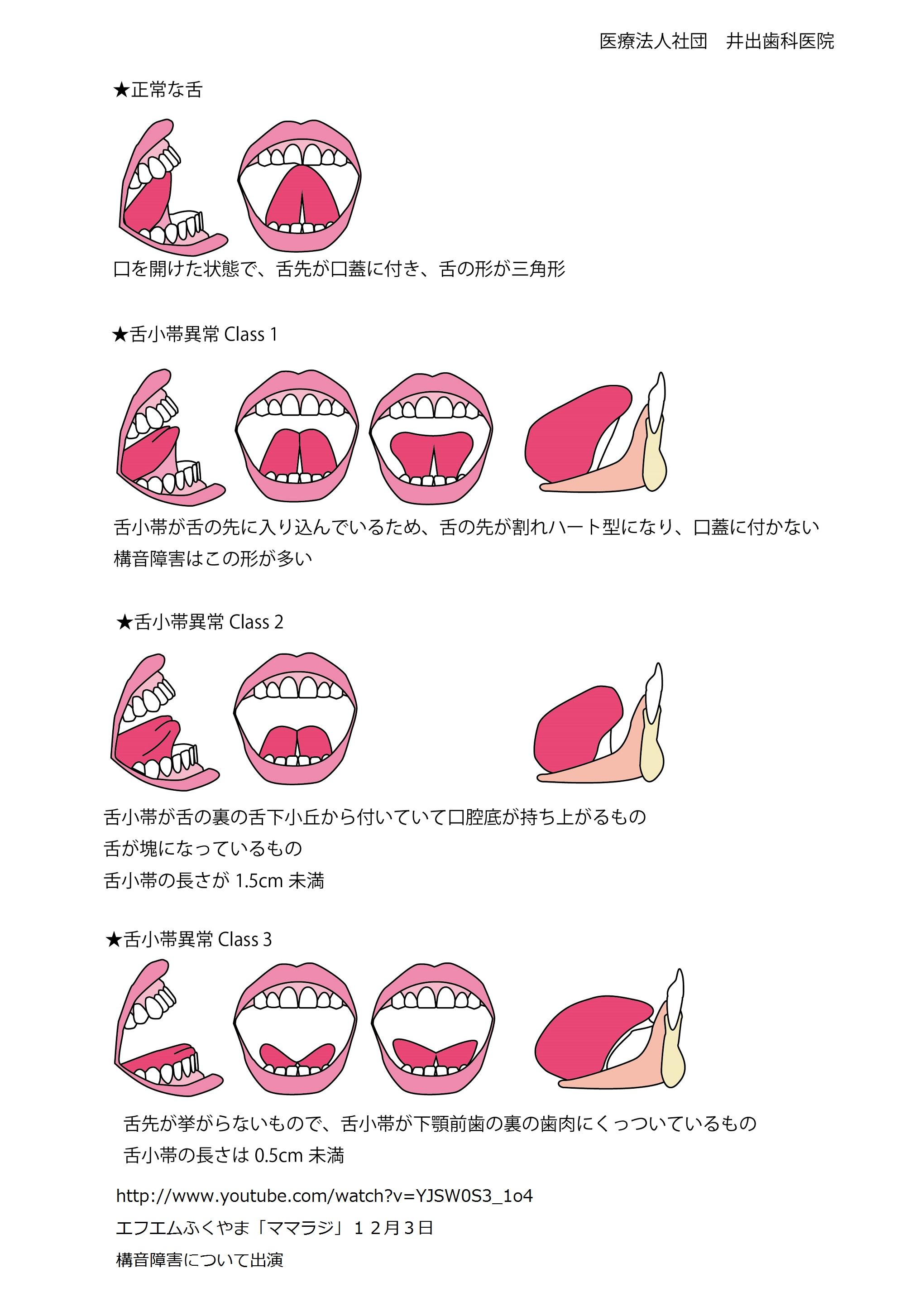 舌小帯は分類によって切るわけでなく、全て口蓋に舌先が付かなければ切ります!