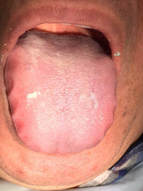誤嚥性肺炎の原因は低位舌!