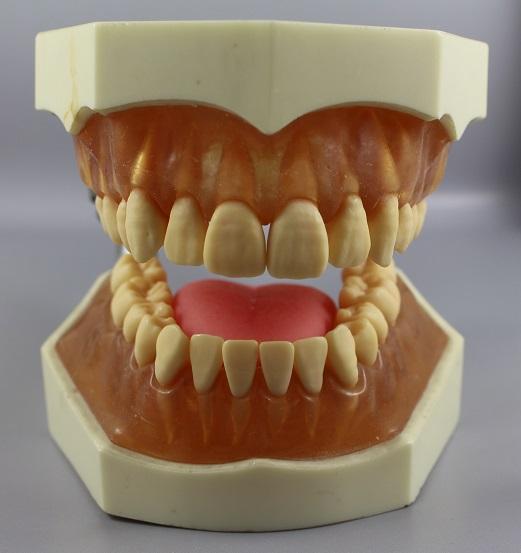 歯周病は歯周病菌が原因でなく、歯ぎしりが原因!