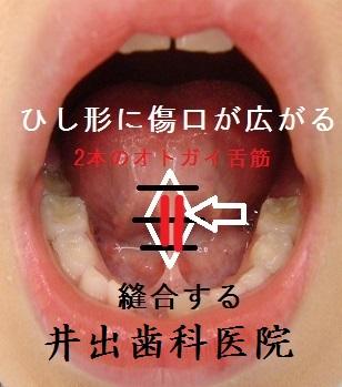 舌小帯手術11月25日です。