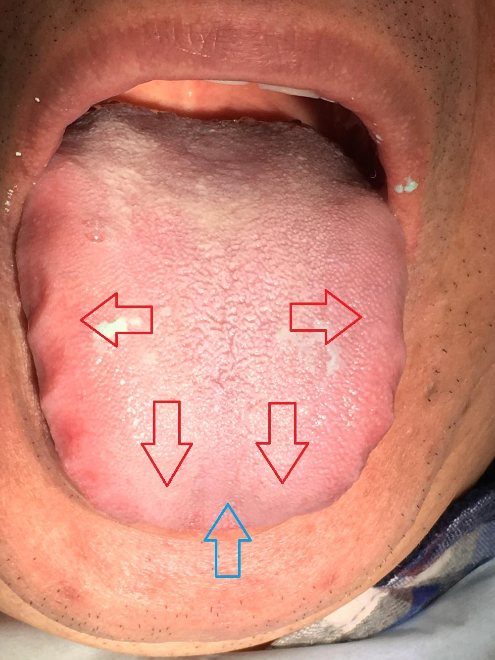 舌ガンの原因は低位舌