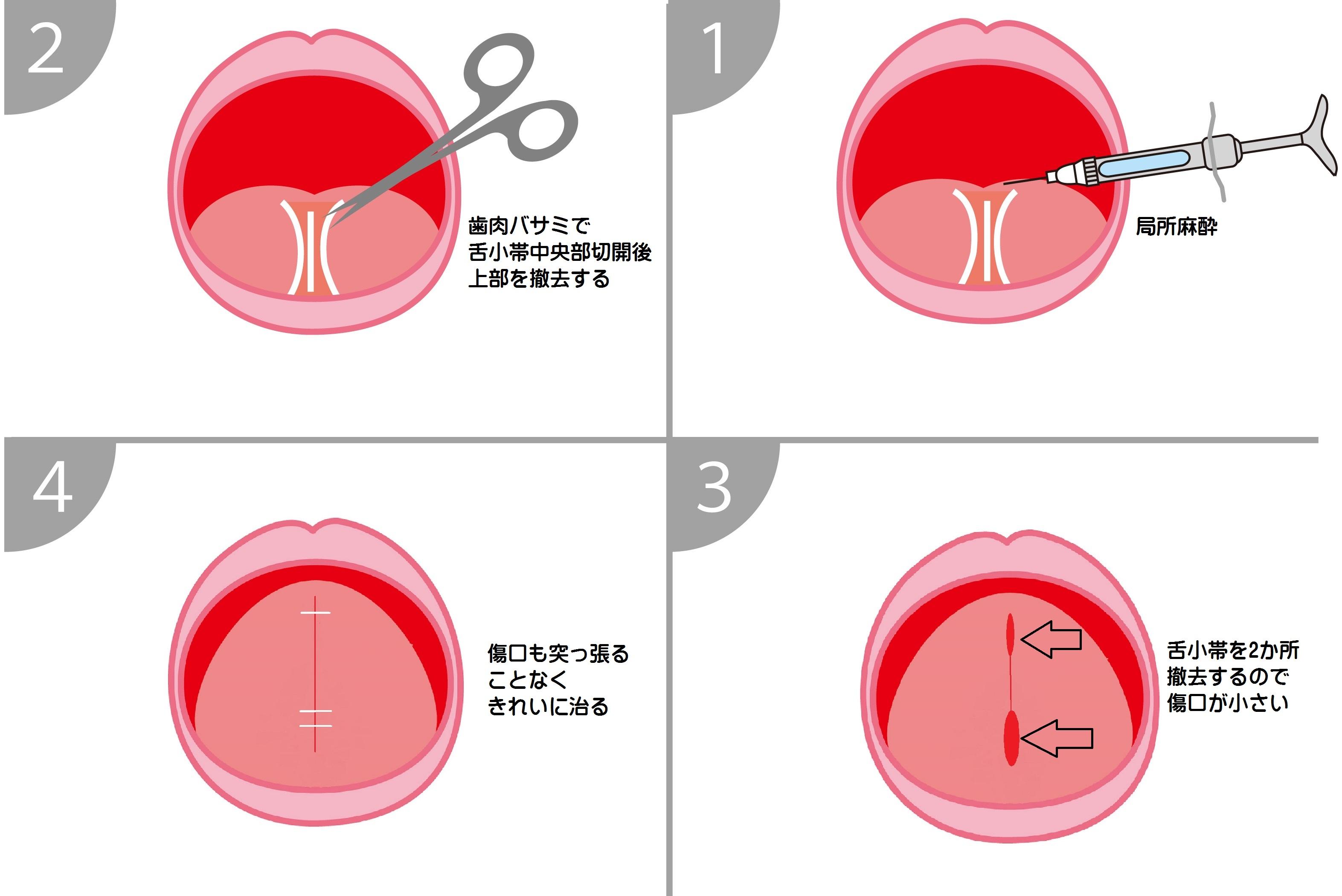 舌小帯短縮症手術・平成31年3月24日無事終了
