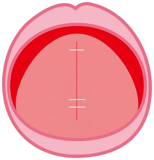 新・舌小帯切離進展術